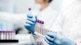 analisi test laboratorio