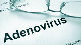 cause congiuntivite virale Adenovirus