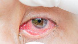 congiuntivite occhi rossi
