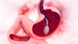 diagnosi reflusso endoscopia