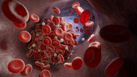 Cause di infarto: embolia e trombosi