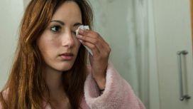 prevenzione congiuntivite salviette oculari