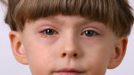 sintomi congiuntivite occhi rossi
