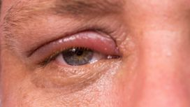 sintomi congiuntivite virale