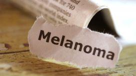 statistiche melanoma