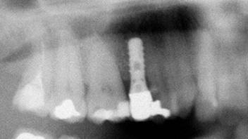 malocclusione-dentaria