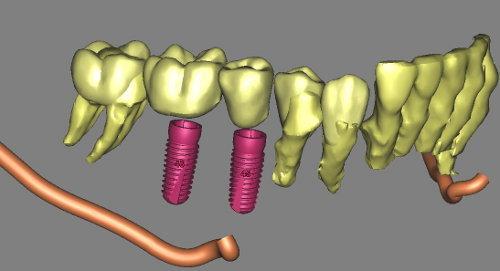 Analisi delle varie strutture nel progetto implantologico