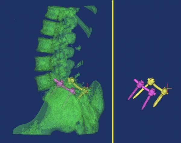 Rivalutazione di un intervento ortopedico