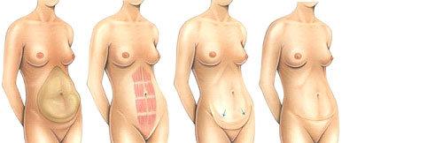 Operazione di addominoplastica
