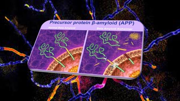 Abuso anabolizzanti e proteina beta amiloide