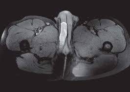 risonanza magnetica del pene