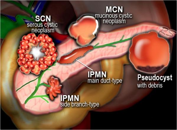 neoformazioni cistiche pancreatiche