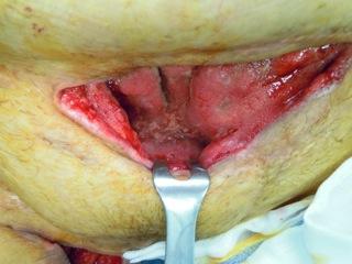 Tessuto di granulazione dopo trattamento con VAC