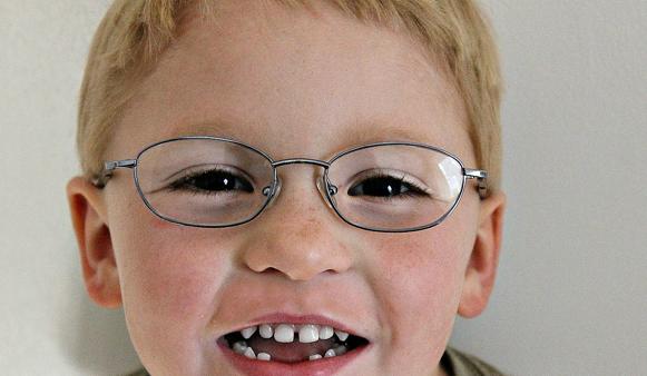 Bambino problemi di vista in età scolare