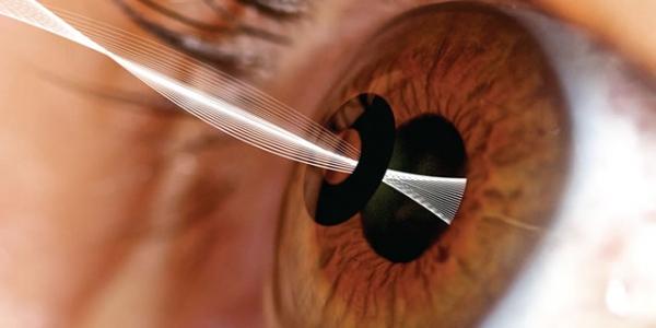 Kamra dispositivo corneale