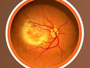 Trapianto di cellule staminali per il trattamento della degenerazione maculare