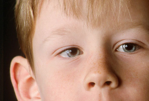 Occhio pigro