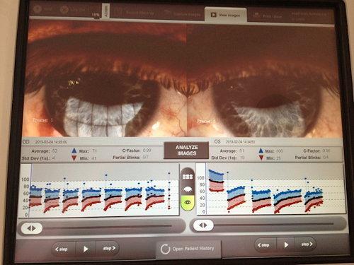 Visualizzazione lacrima
