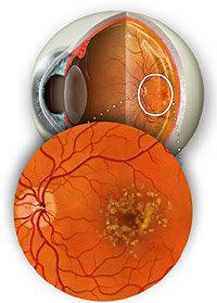 come appare la AMD sulla retina