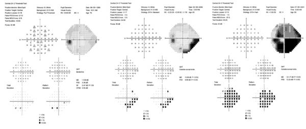 Ripristino visione nel glaucoma
