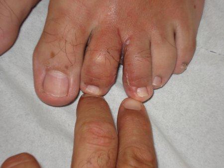 Postoperatorio. Si mette in evidenza la separazione ottenuta nel piede sinistro