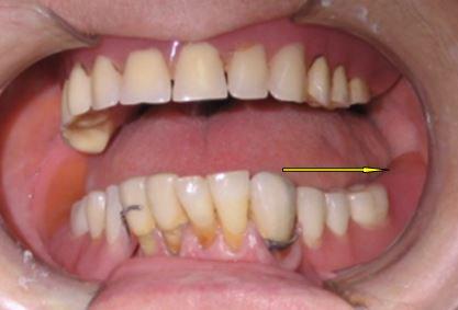 Mancanza denti