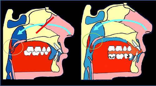 Malocclusione con retrusione mandibolare