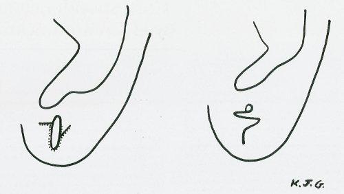 Disegno schematico di come correggere un coloboma auris parziale