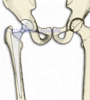 """articolazione dell'anca dopo l'impianto di un'artroprotesi """"classica"""""""