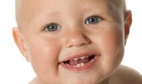 Bambino sorriso dentini