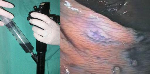 Endoscopio e colon
