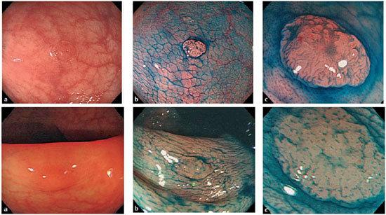 Visioni endoscopiche del colon