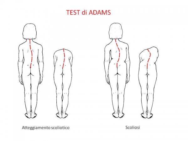 test di Adams
