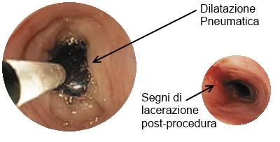 Dilatazione pneumatica del cardias