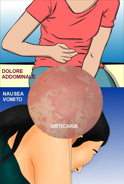 Sintomi Anisakiasi