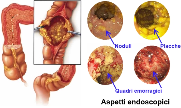CDI - aspetto endoscopico