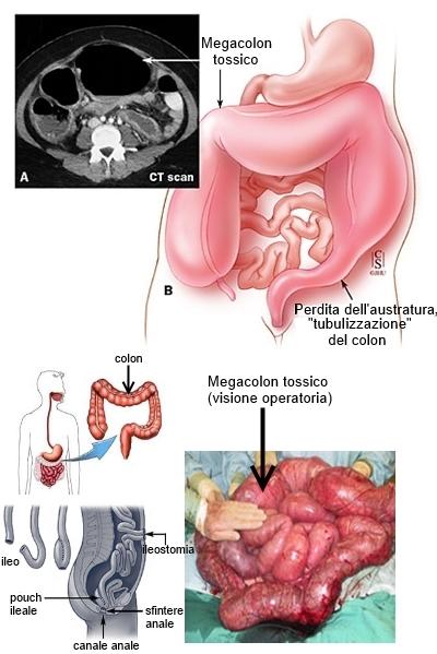 Megacolon - Trattamento chirurgico
