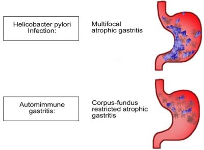Gastrite Cronica Tipo A e B
