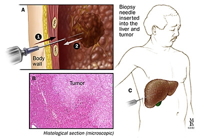 Biopsia HCC