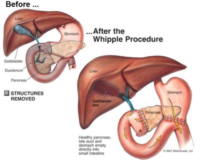 DCP K pancreas