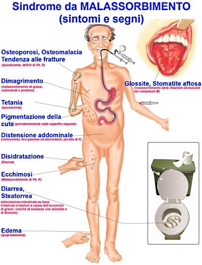 Segni e sintomi