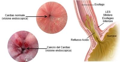 Cancro del Cardias
