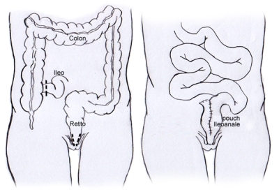 Proctocolectomia Totale Restaurativa