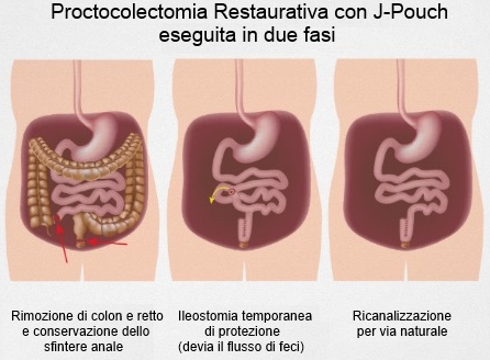 Proctocolectomia in due fasi