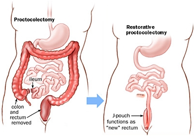 Proctocolectomia Restaurativa