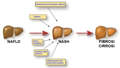 Cause di NAFLD