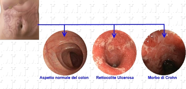 Endoscopia delle IBD