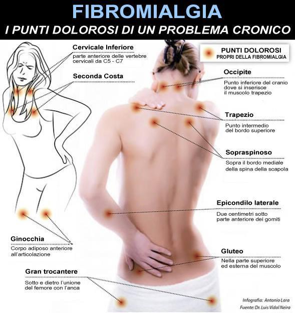 Fibromialgia punti dolorosi