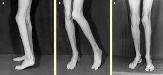 Alterazione del posizionamento del piede
