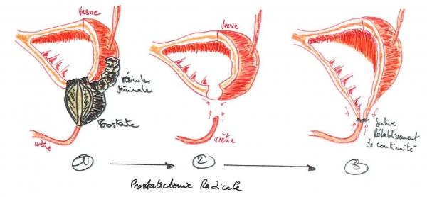 Prostatectomia radicale